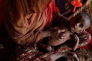 '1 sa 4 batang Rohingya malnourished'