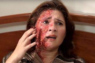 PANOORIN: Vina Morales, 'sinunog' ang mukha sa 'Araw Gabi'