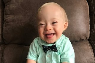 Baby with Down syndrome is Gerber's baby of the year