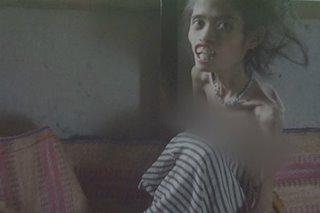 Babaeng buto't balat sa Leyte, nangangailangan ng tulong