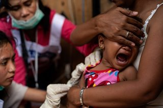 Calabarzon sees surge in measles cases