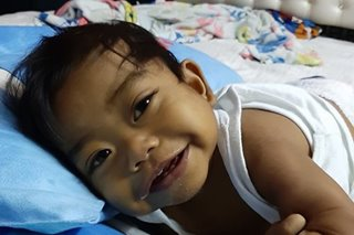 Baby boy whose transplant was funded through pa's banana cakes dies