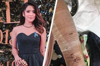 Antoinette Taus in hospital after dog attack