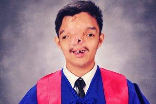 High honors graduate na may cleft palate, may payo sa pagtatapos ng pag-aaral