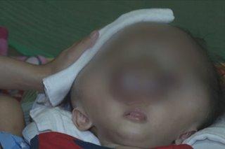 Batang may hydrocephalus di maoperahan dahil sa COVID-19 cases sa mga ospital