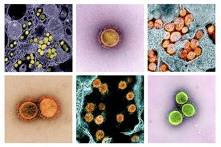 Coronavirus can set off immune system 'storm'; these drugs may calm it